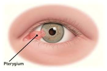 pterygium and pinguecula - riverside eye center, Skeleton