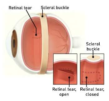 Scleral-Buckle-350x323
