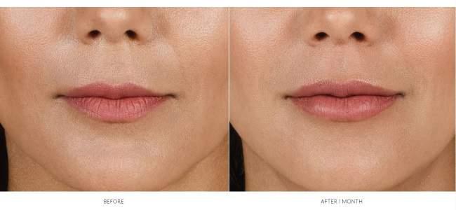 Botox and Dermal Fillers