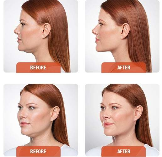 kybella-before-and-after-cr